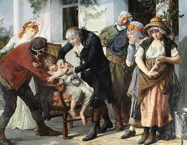 Edward Jenner (1749-1823) performing the first vaccination against Smallpox in 1796 1879